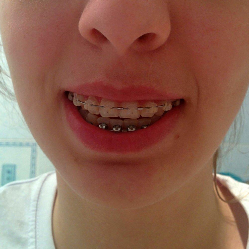 Привыкать к вставным зубами