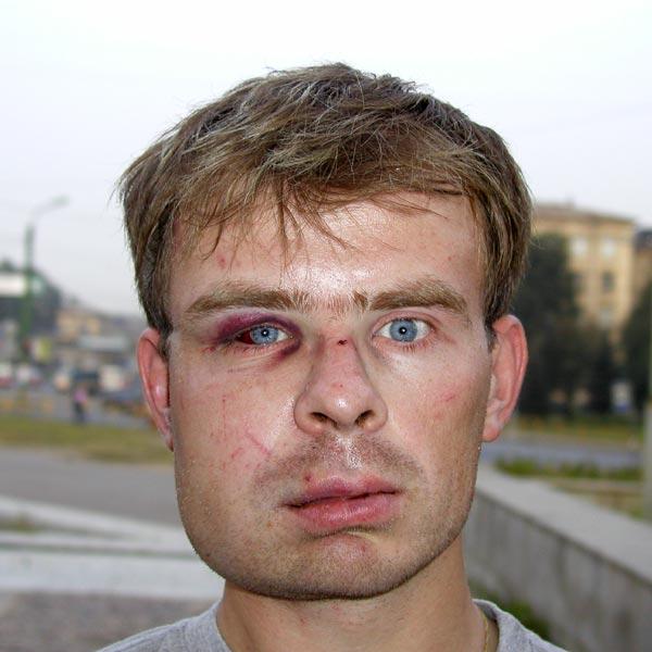 А вот у меня, между прочим, щеку раздуло раза в полтора, в ране образовался гной.