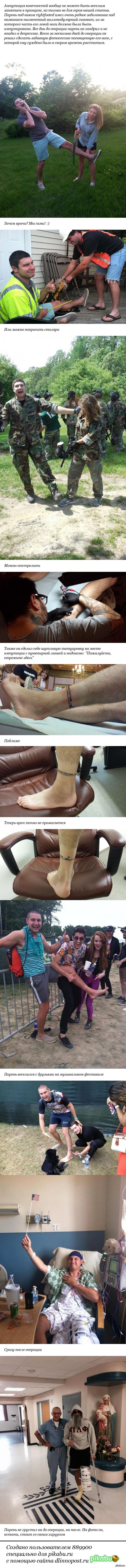 Забавная фотосессия посвященная...ноге   ампутация ноги, нога, ампутация, фотосессия, длиннопост