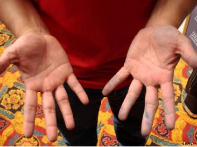 Как лечить тремор рук в домашних условиях